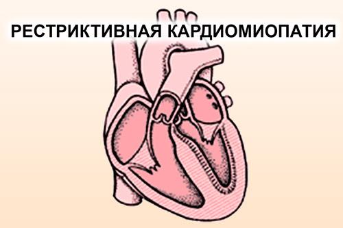 Сердце с рестриктивной кардиомиопатией