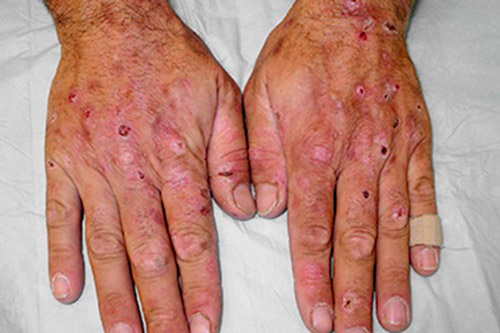 Признаки гемохроматоза