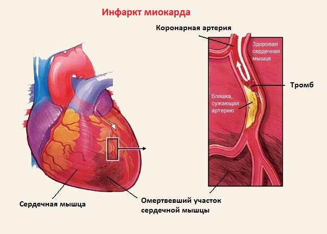 рубец на сердце после инфаркта