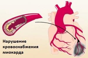 Нарушение кровоснабжения миокарда