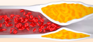 Почему возникает склероз аорты сердца и что с этим делать