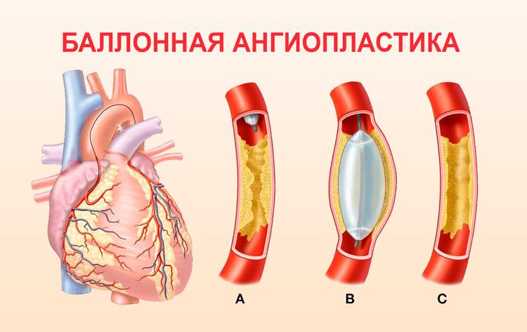 Проведение баллонной ангиопластики