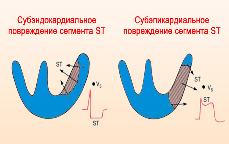 Отличие субэндокардиального и субэпикардиального повреждений