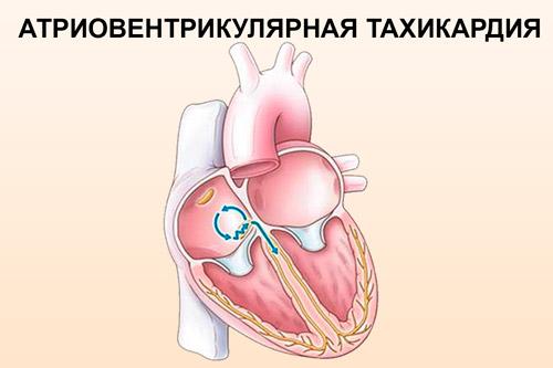Атриовентрикулярная узловая тахикардия
