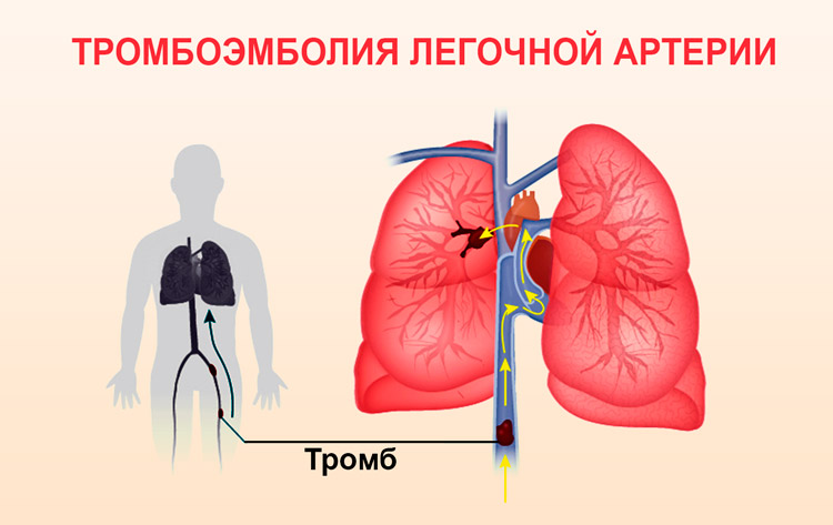 uchashchennoe serdcebienie 2 - Heart palpitations, what to do Causes, medicines