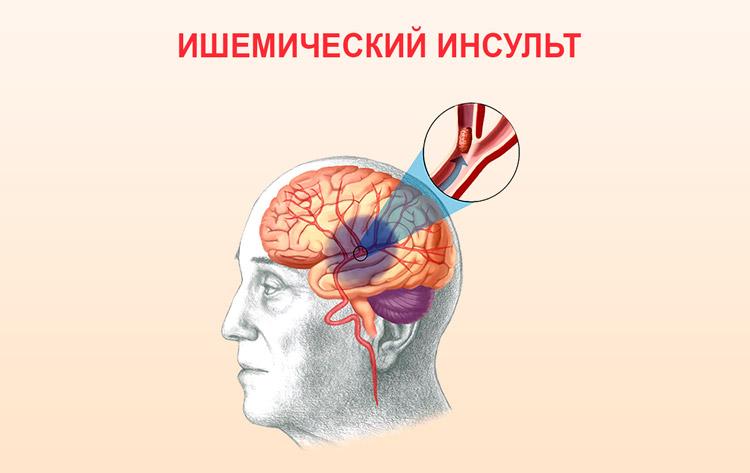 uchashchennoe serdcebienie 7 - Palpitacije srca što učiniti i kako se liječiti