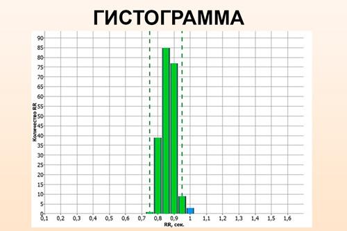 Вариационная пульсограмма