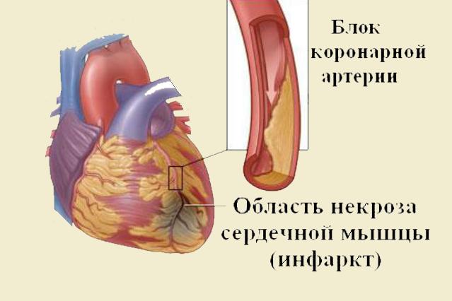 Болезнь сердца - инфаркт миокарда