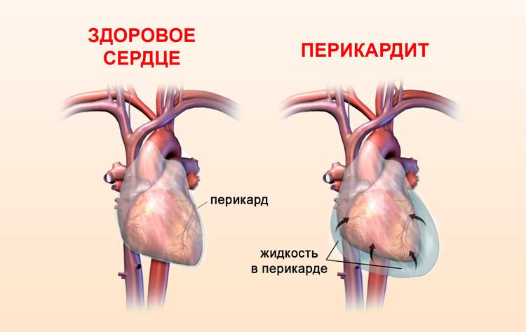 Сердце с жидкостью в перикарде