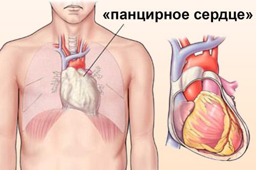 Фиброз перикарда