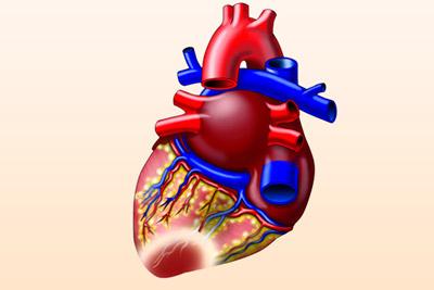 Симптомы и лечение крупноочагового инфаркта миокарда