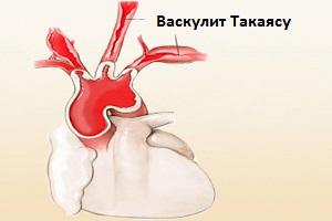 Синдром Такаясу
