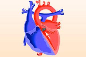 Что такое стеноз аорты
