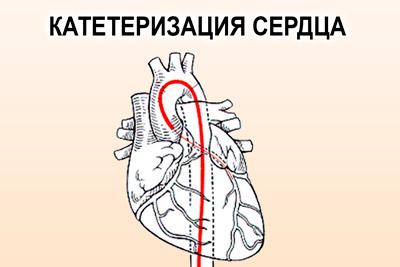 Катетер в сердце
