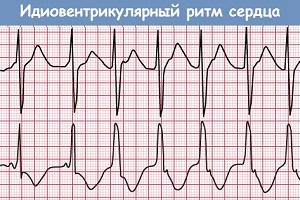 Идиовентрикулярный ритм сердца