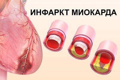 Образование инфаркта