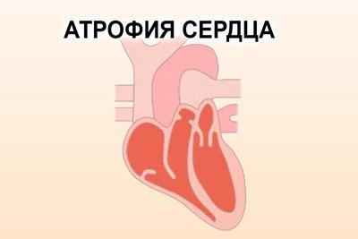 Сердечная атрофия