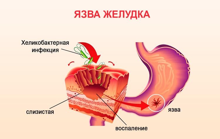 Язва в желудке