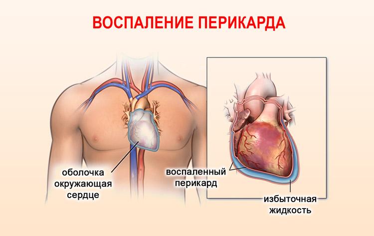 Воспаление перикарда
