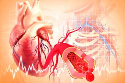 Все о заболеваниях сердечно-сосудистой системы