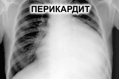 Перикардит на рентгене