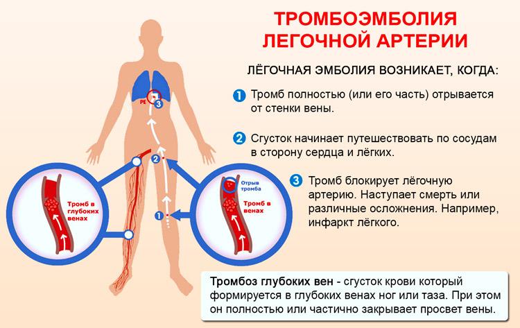 Закупоркой ствола или ветвей легочной артерии