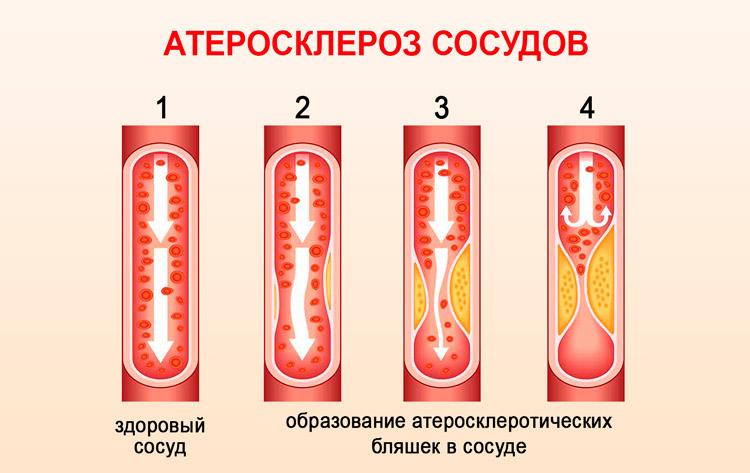 Образование атеросклеротических бляшек в сосуде