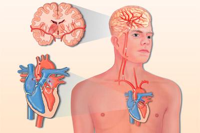 Инсульт с инфарктом