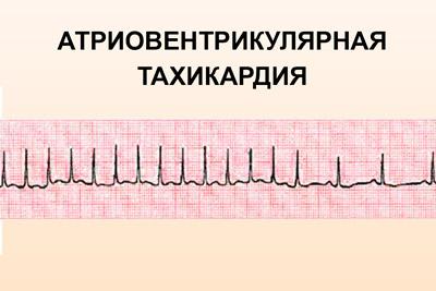 Атриовентрикулярная пароксизмальная тахикардия