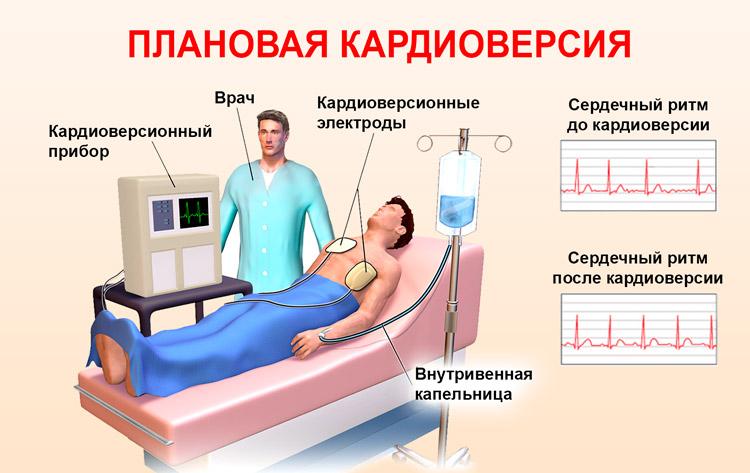 Проведение кардиоверсии