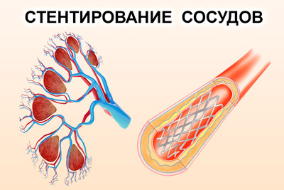 Стентирование почечных сосудов