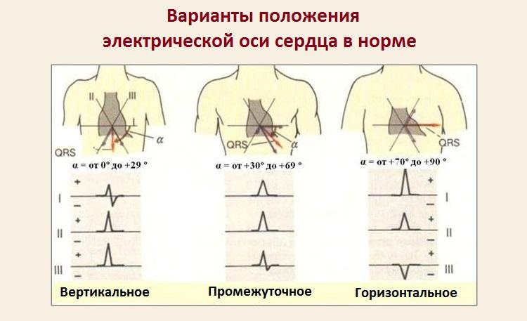 Варианты положения электрической оси сердца