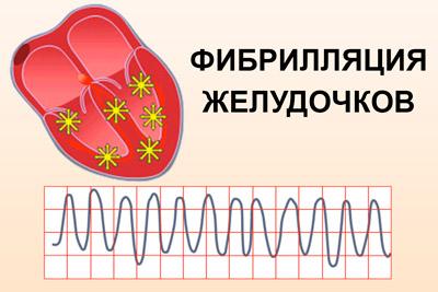 Фибрилляцией желудочков сердца