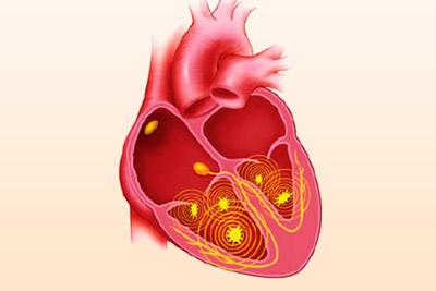 Причины развития и клиническая картина фибрилляции желудочков