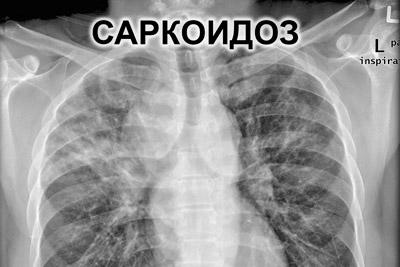Саркоидоз на рентгене