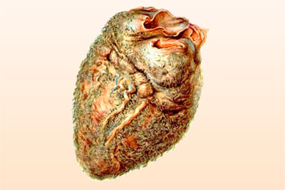 Сердечный перикард