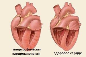 Развитие кардиомиопатии