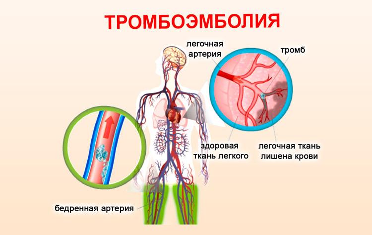 Учащенное сердцебиение и слабость в теле: причины