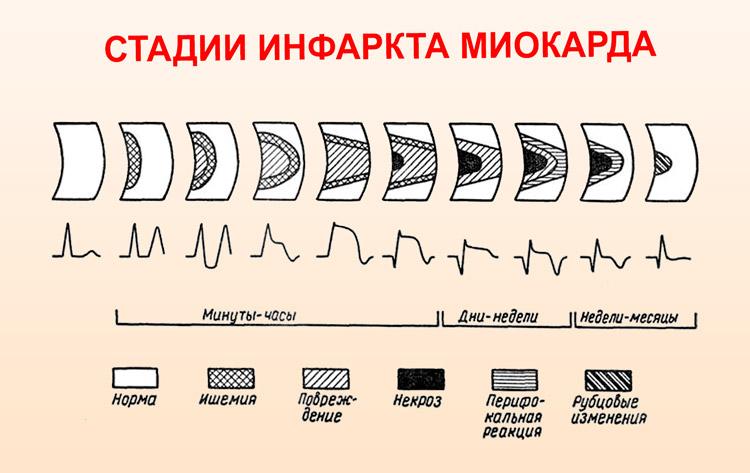Динамика ЭКГ на различных стадиях инфаркта