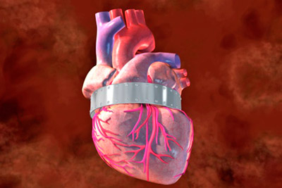 Передний инфаркт миокарда
