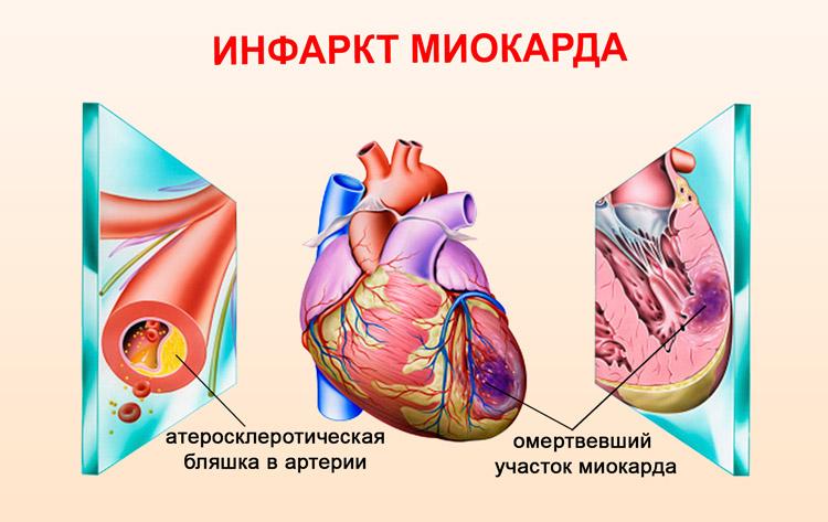 прогноз при переднем инфаркте миокарда