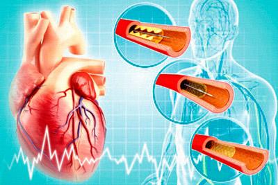 Установка стентов при инфаркте