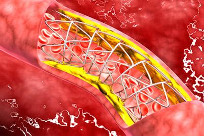 Стентирование после инфаркта миокарда