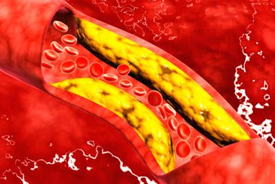 Атеросклероз в артерии