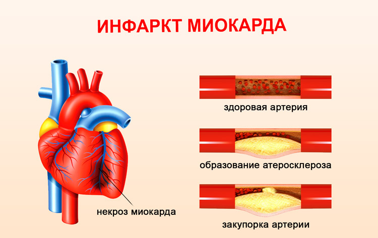 инфаркт перегородки миокарда симптомы