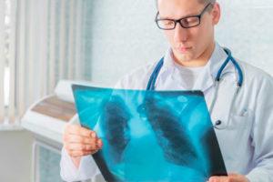 Симптомы и лечение инфекционного эндокардита