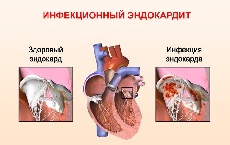 Инфекция эндокарда