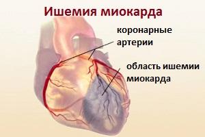 Ишемия миокарда
