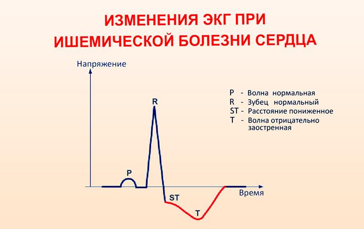 Возможные изменения ЭКГ при ишемии сердца