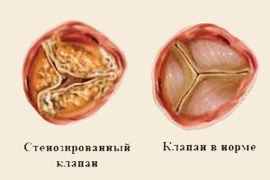 Стенозированный клапан